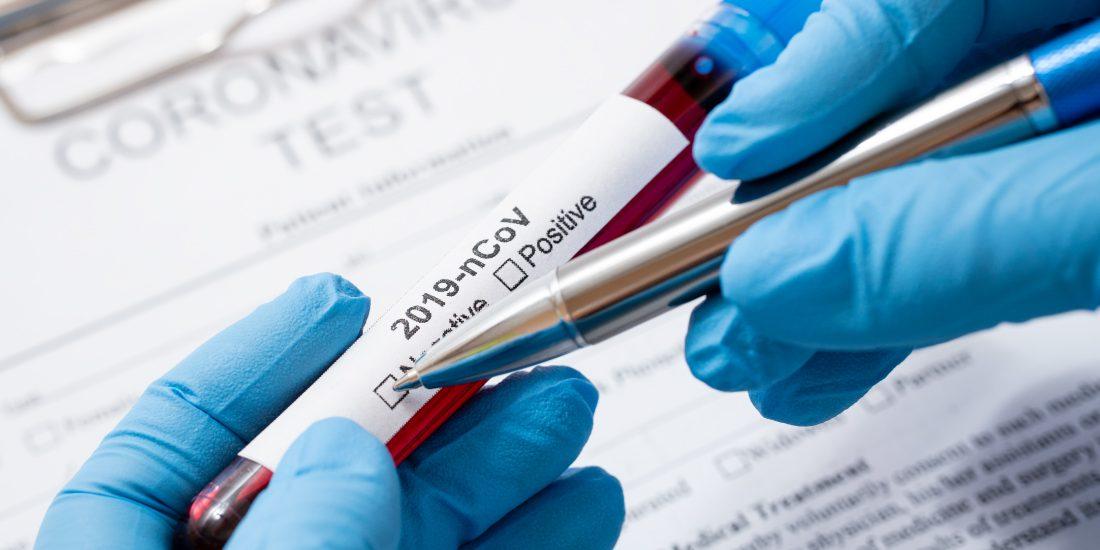 Ministério-da-Saúde-disponibiliza-as-melhores-evidências-sobre-a-Covid-19